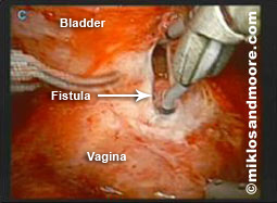 Fistula Repair picture 1